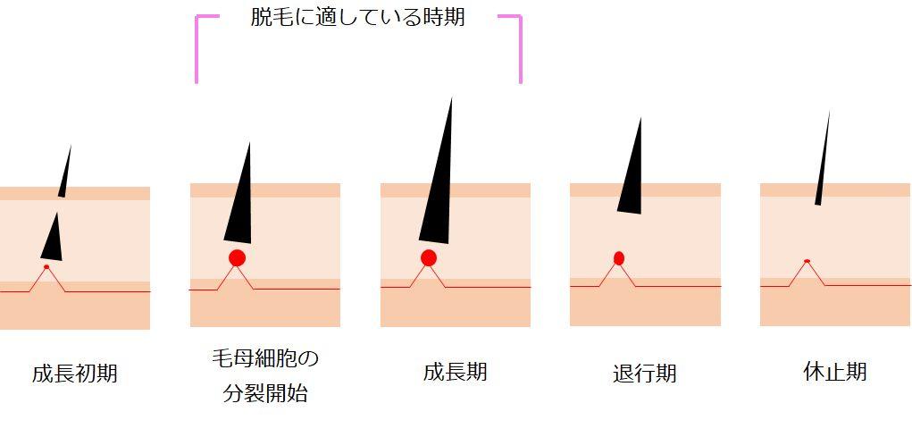 脱毛器の仕組み